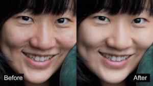 SkinFiner.cover1  300x169 - دانلود SkinFiner 4.0 - نرم افزار رفع چین و چروک و لکهای پوست در تصاویر